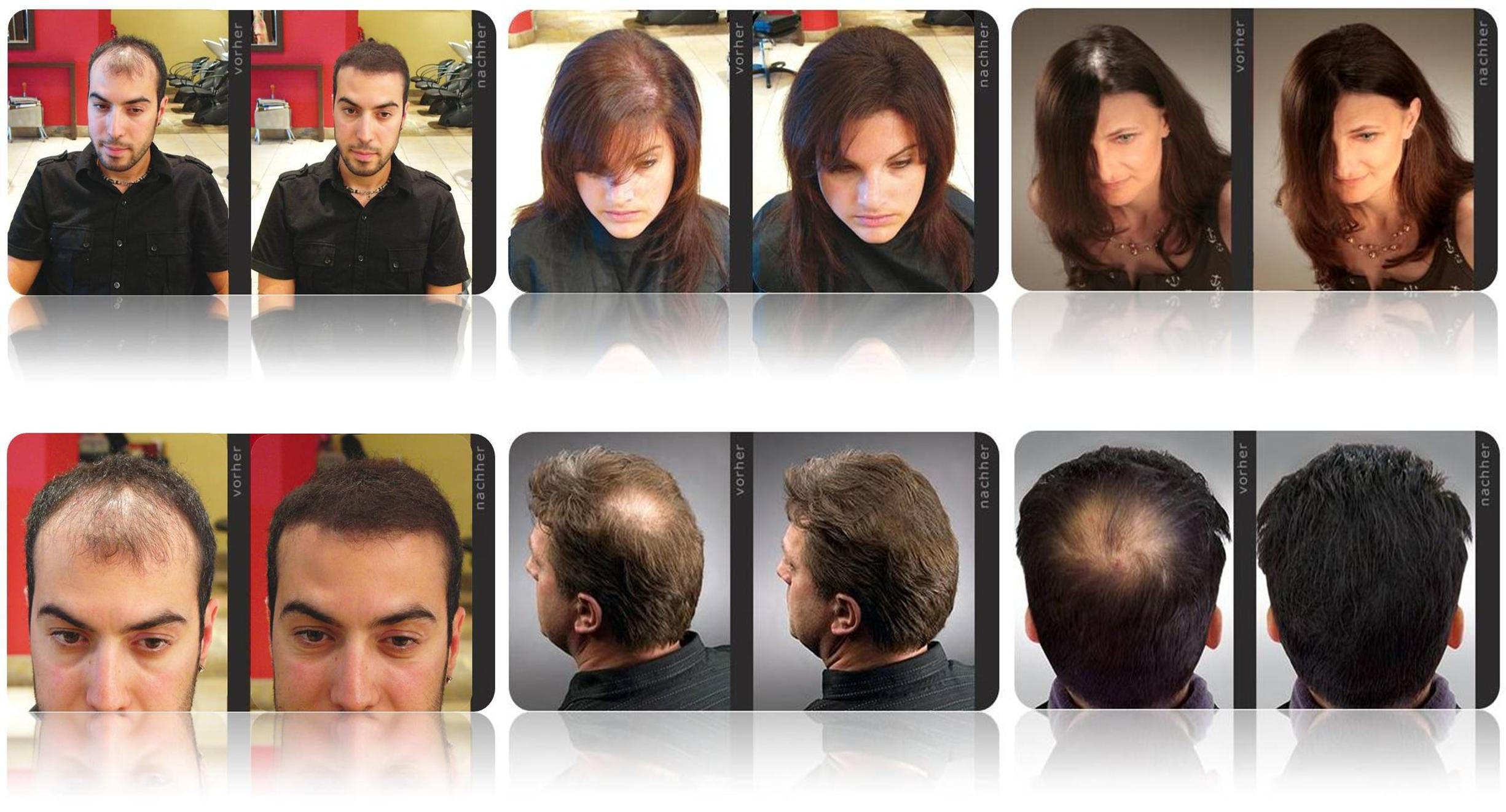 Hairfor2 Vorher Nachher