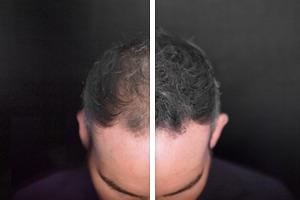 Schütthaar Vorher und Nachher - Toppik Effekt